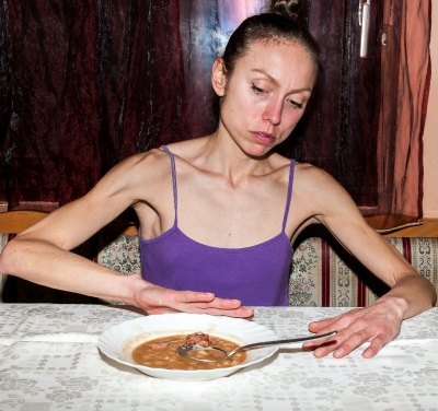 Anorexia Learn The Signs And Symptoms  Troubled Teens